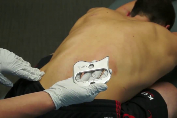 Instrument-Assisted Soft Tissue Mobilization (IASTM)